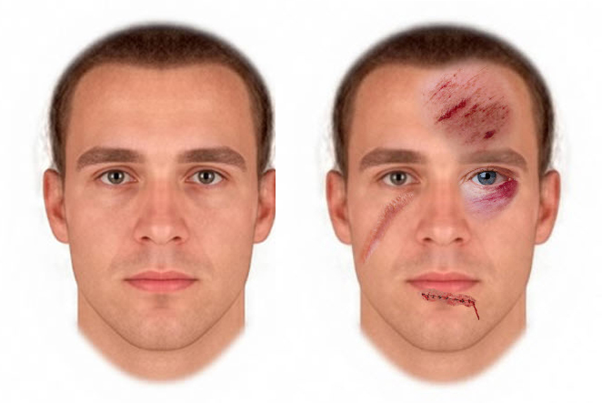 I AM ABLE TO MAKE YOUR FACE LOOK APPEAR IN A SERIOUS ACCIDENT OR FIGHT,  FROM A PHOTO YOU SUPPLY