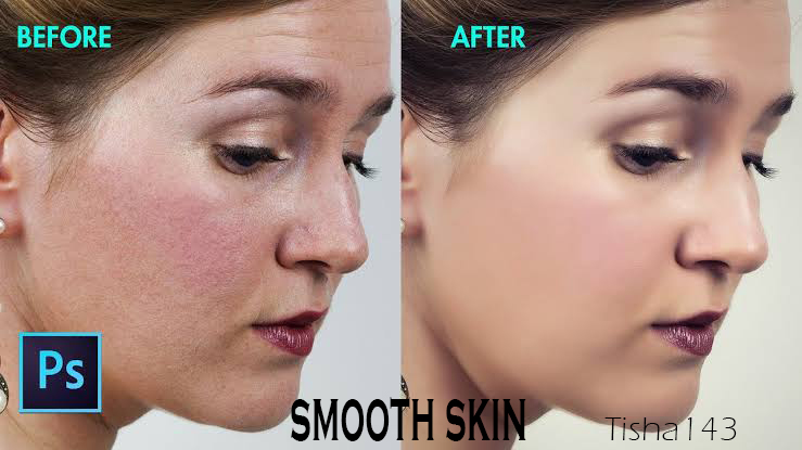 Professional High-End Skin Re-touch Remove Blemishes, Wrinkles, Acne fast delivery
