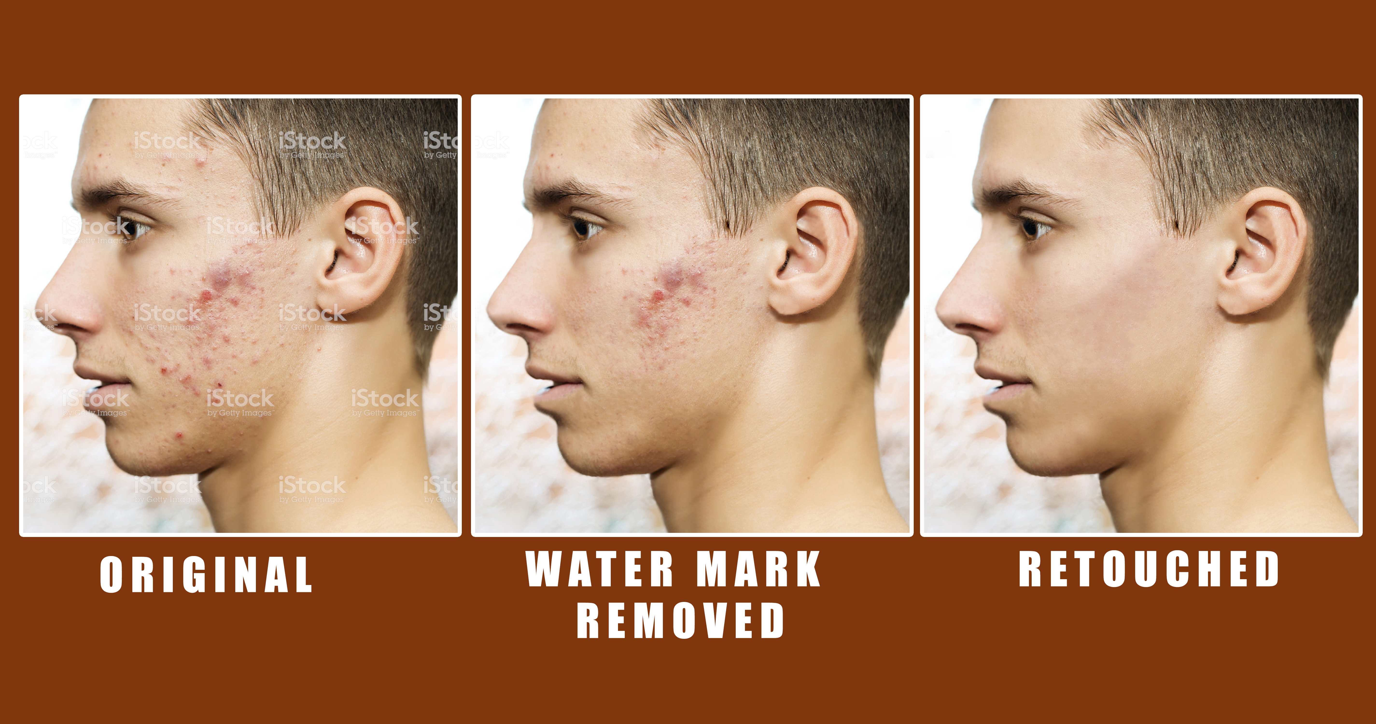 i will do water mark removing,  High end skin retouching