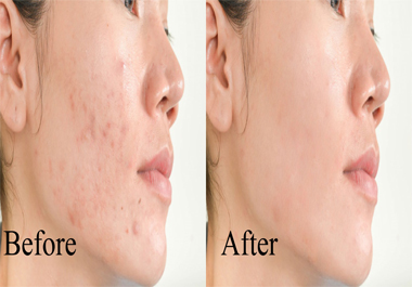 I will do photo editing and skin retouching within 24 hours