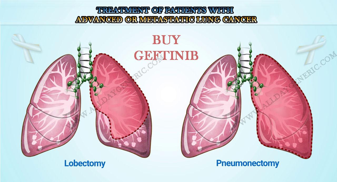 Geftinib Cheap Online