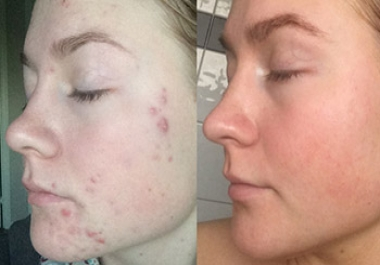 I CAN MAKE YOUR SKIN NICE & SMOOTH, FREE OF ANY MARKS, SCARS, PIMPLES